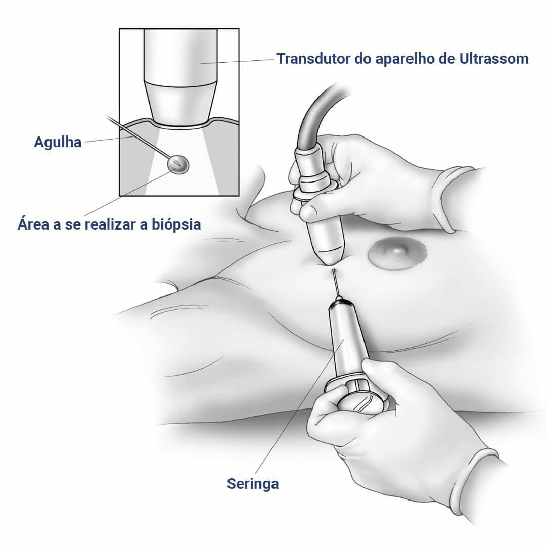 puncao-aspirativa-por-agulha-fina-PAAF